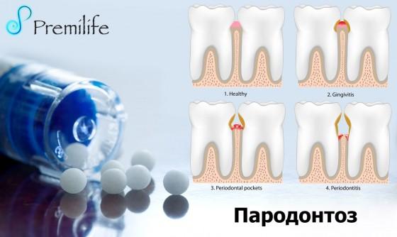 Periodontal-Disease-russian