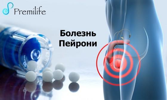 Peyronie's-Disease-russian