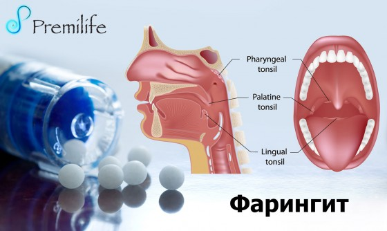 Pharyngitis-russian
