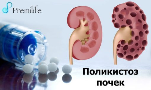 Почки и мочевыводящая система Archives - Premilife - Homeopathic Remedies