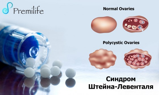 Polycystic-Ovary-Syndrome-russian