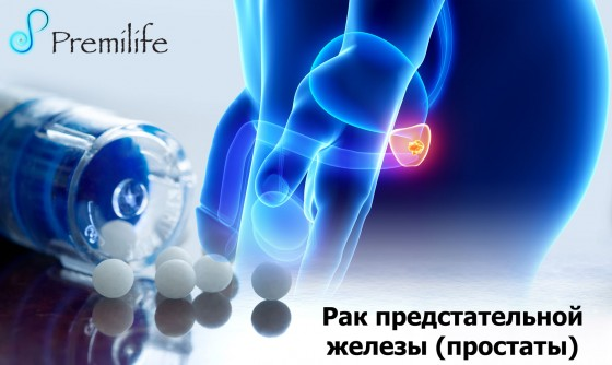 Prostate-Cancer-russian