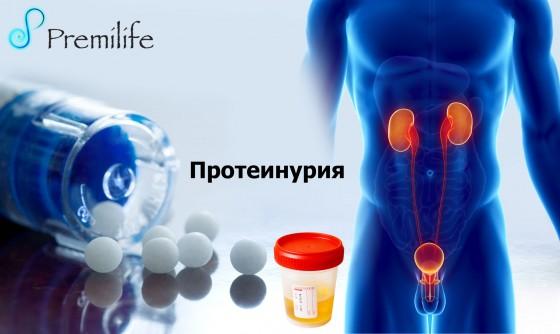 Proteinuria-russian