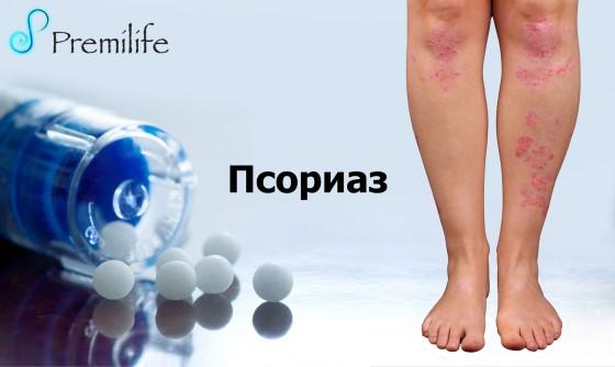 Psoriasis-russian
