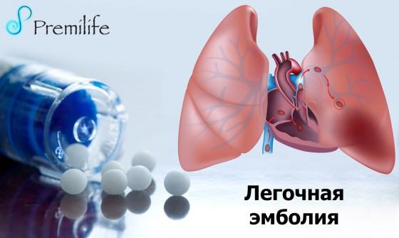 Pulmonary-Embolism-russian
