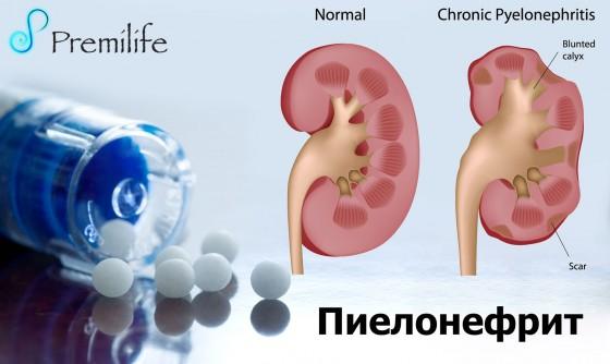 Pyelonephritis-russian