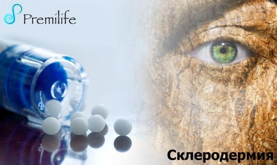 Scleroderma-russian