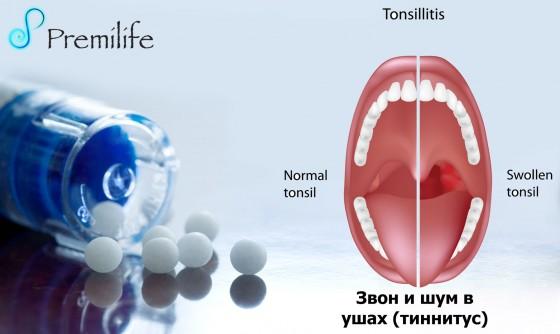Tonsillitis-russian