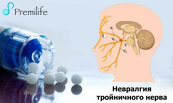 Trigeminal-Neuralgia-russian