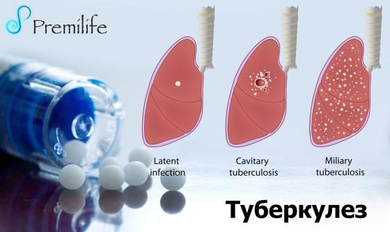 Tuberculosis-russian