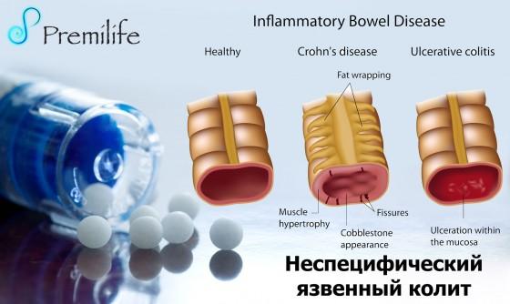 Ulcerative-Colitis-russian