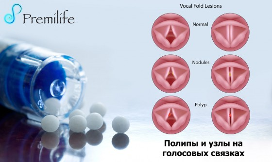 Vocal-cord-nodules-and-polyps-russian