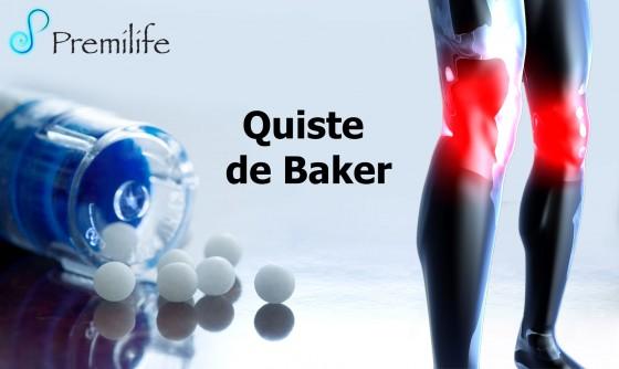 baker's-cyst-spanish