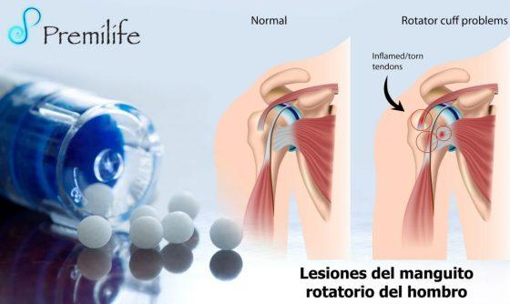 rotator-cuff-injuries-spanish