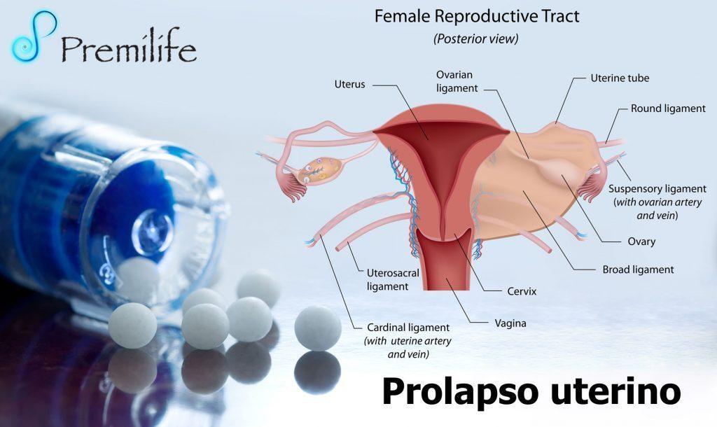 Prolapso uterino: causas, sntomas, grados y tratamiento