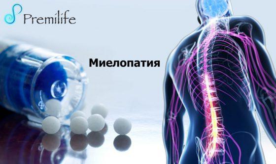 Myelopathy-russian