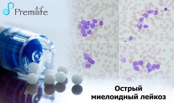 acute-myeloid-leukemia-russian