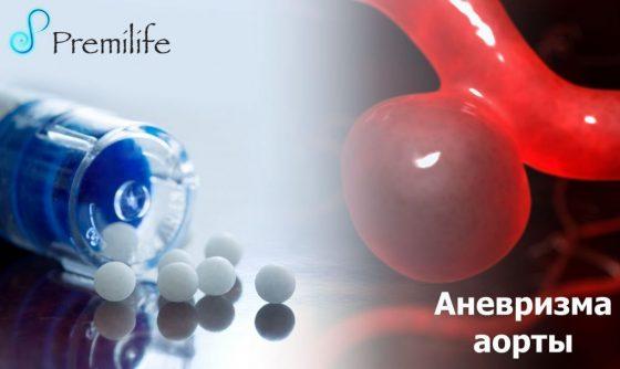 aortic-aneurysm-russian