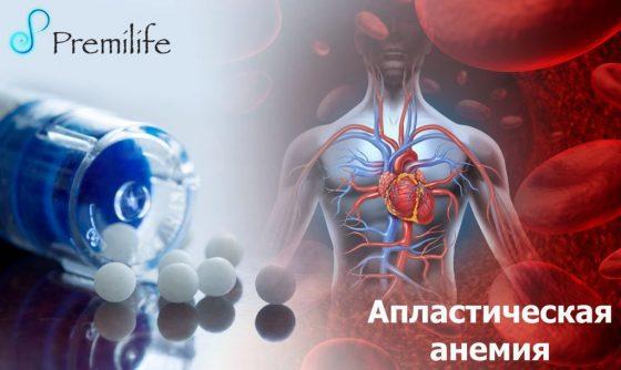 aplastic-anemia-russian