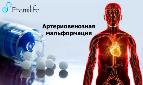 arteriovenous-malformations-russian