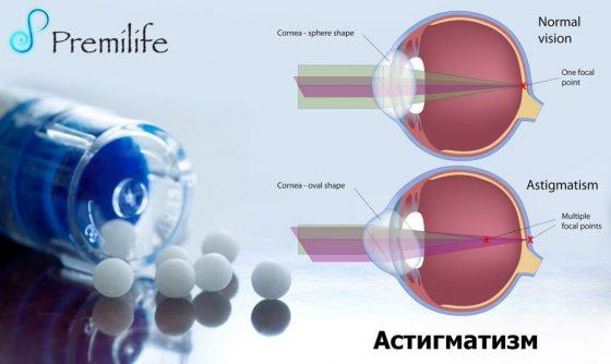 astigmatism-russian