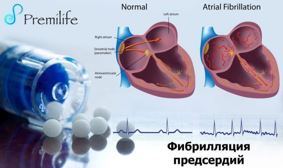 atrial-fibrillation-russian