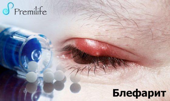blepharitis-russian