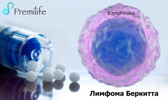 burkitt's-lymphoma-russian
