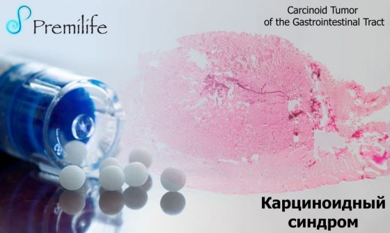 carcinoid-syndrome-russian