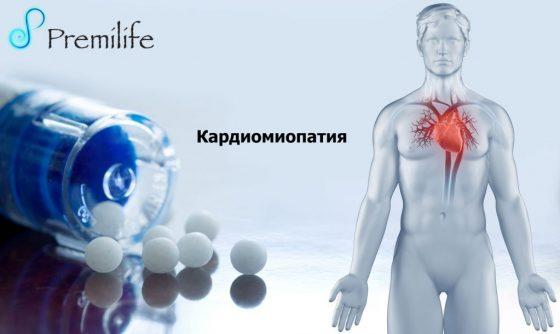 cardiomyopathy-russian