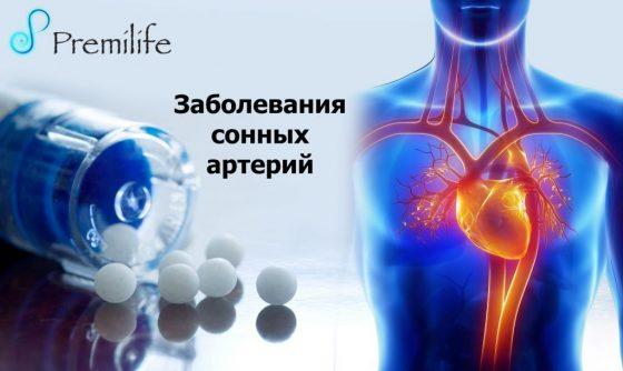 carotid-artery-disease-russian