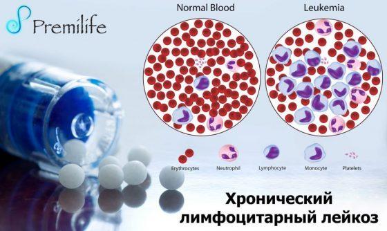 chronic-lymphocytic-leukemia-russian