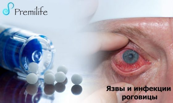 corneal-ulcers-and-infections-russian