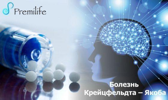 creutzfeldt-jakob-disease-russian