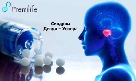 dandy-walker-syndrome-russian
