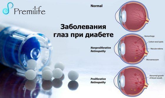 diabetic-eye-problems-russian