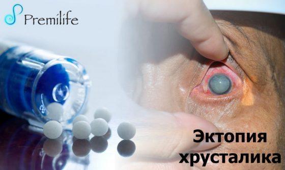ectopia-lentis-russian