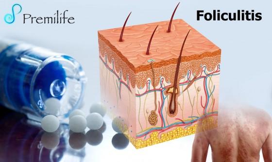 folliculitis-spanish