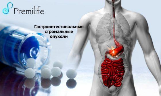 gastrointestinal-stromal-tumors-russian