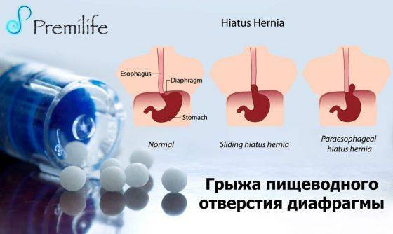 hiatal-hernia-russian