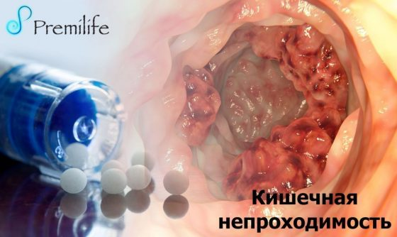 intestinal-obstruction-russian