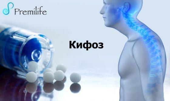 kyphosis-russian