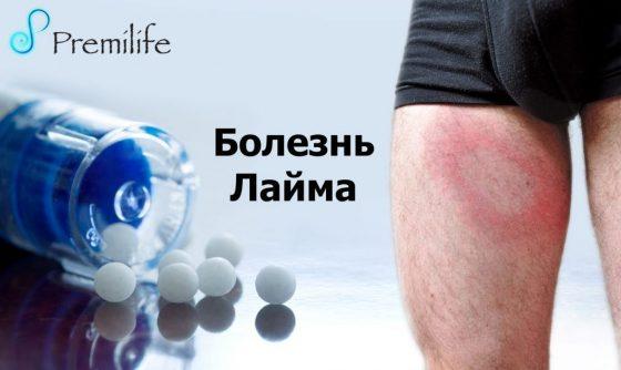 lyme-disease-russian