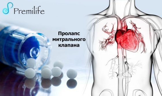 mitral-valve-prolapse-russian
