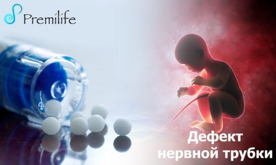 neural-tube-defects-russian