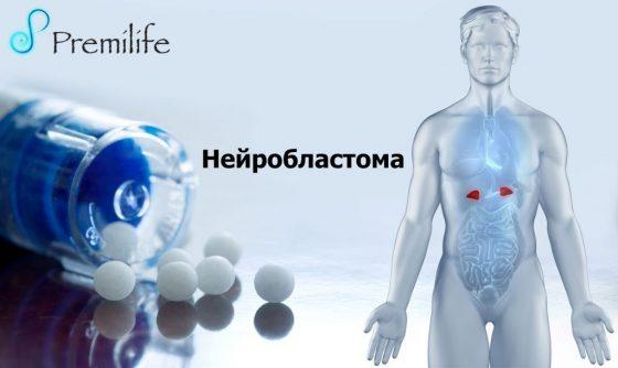 neuroblastoma-russian