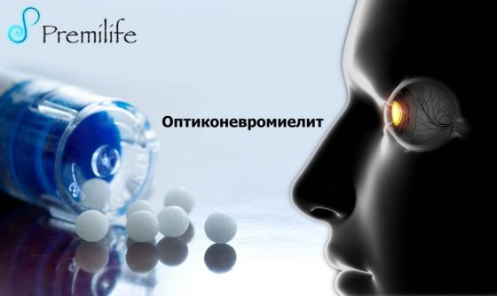 neuromyelitis-optica-russian