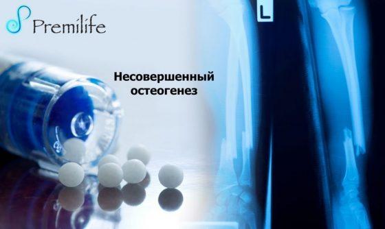 osteogenesis-imperfecta-russian