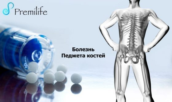 paget's-disease-of-bone-russian