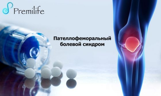 patellofemoral-pain-syndrome-russian